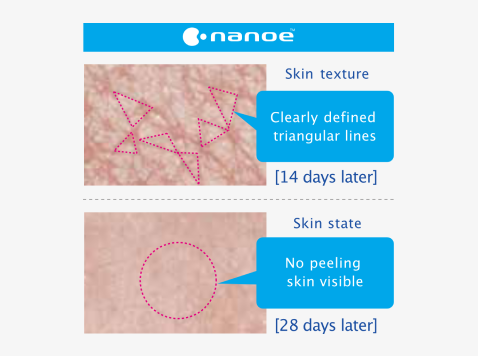 Skin condition with nanoe™
