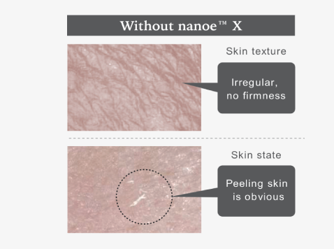 Skin condition without nanoe™ X