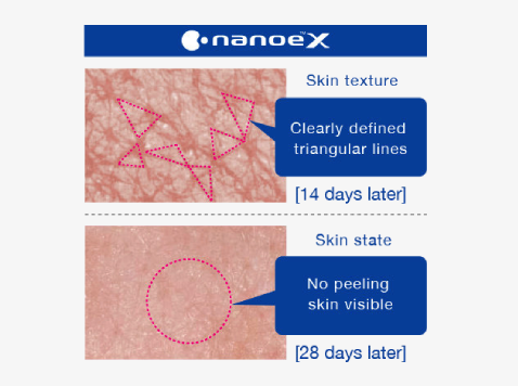 Skin condition with nanoe™ X